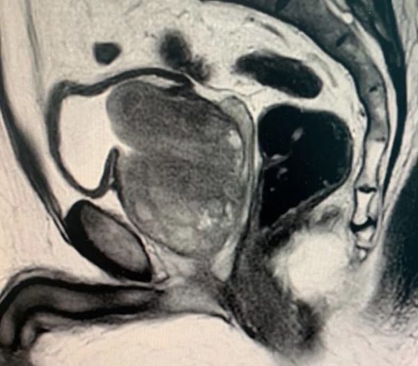 Volumineux adénome de la prostate