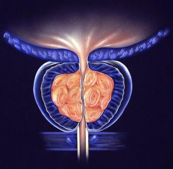 hypertrophie prostatique - adénome de la prostate