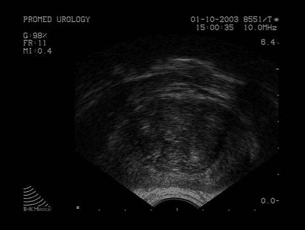 échographie de la prostate