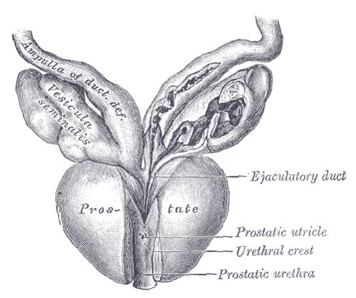 Adénome de la prostate: préserver l'éjaculation c'est possible.
